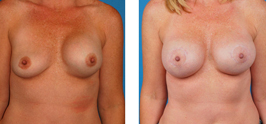 Breast Correction Before and After bakersfield