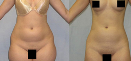 Liposuction-sm